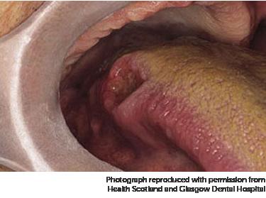 mondkanker