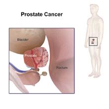 prostaatkanker(2)